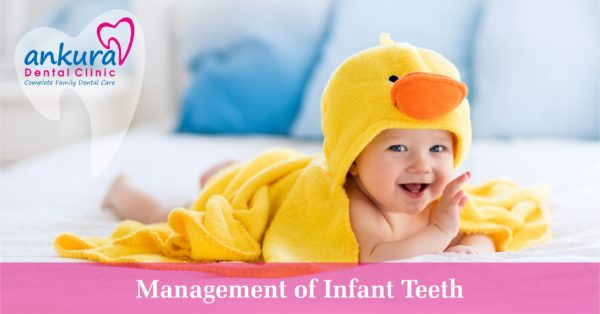 Management of Infant Teeth
