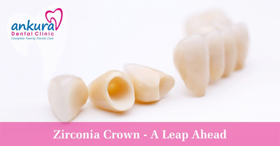 zirconia crown a leap ahead