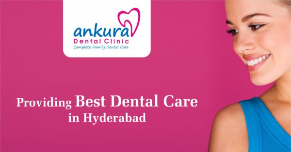 Providing Best dental Care in Hyderabad