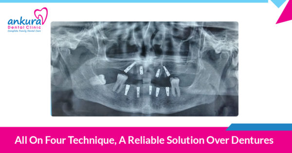 All on Four Technique, A Reliable Solution Over Dentures
