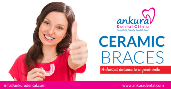 Ceramic Braces | Advantages of Ceramic Braces