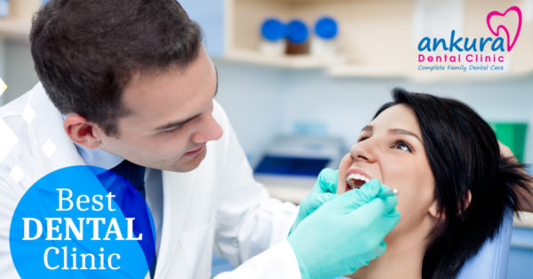 Best Dental Clinic /Hospitals in Hyderabad