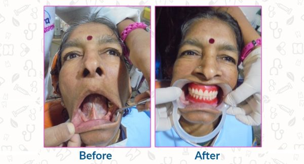 Dental Case Study The New Set of Teeth to The Patient