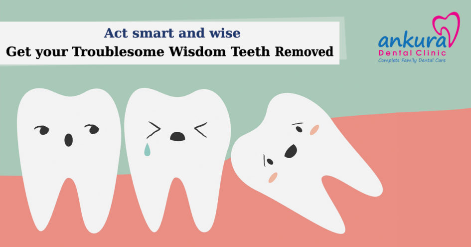 how to know when wisdom teeth need to be removed