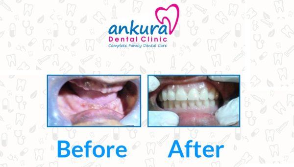 Complete Denture Case Study