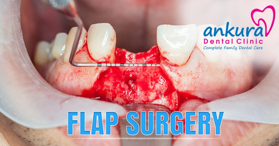 Flap Surgery Signsa nd Symptoms