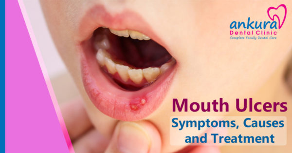 Mouth Ulcers Symptoms Causes and Treatment