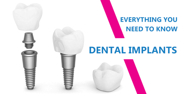 Dental-Implants-In-Hyderabad