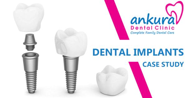 Dental Implants in hyderabad